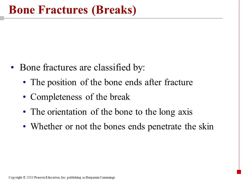 Copyright © 2003 Pearson Education, Inc. publishing as Benjamin Cummings Bone Fractures (Breaks) Bone fractures are classified by: The position of the