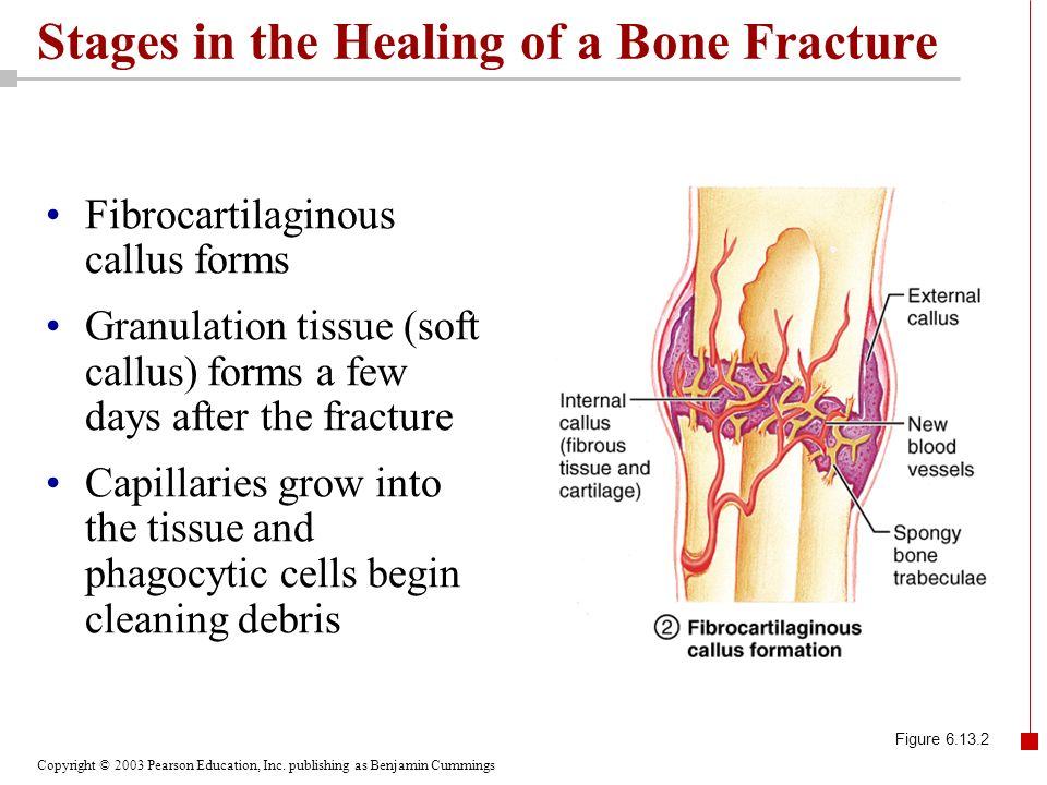 Copyright © 2003 Pearson Education, Inc. publishing as Benjamin Cummings Stages in the Healing of a Bone Fracture Fibrocartilaginous callus forms Gran