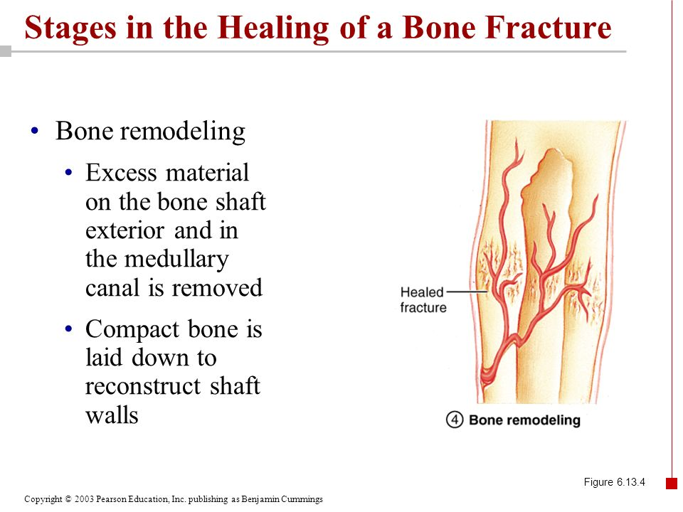 Copyright © 2003 Pearson Education, Inc. publishing as Benjamin Cummings Stages in the Healing of a Bone Fracture Bone remodeling Excess material on t