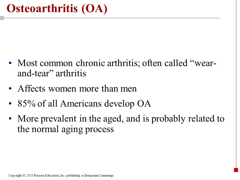 Copyright © 2003 Pearson Education, Inc. publishing as Benjamin Cummings Osteoarthritis (OA) Most common chronic arthritis; often called wear- and-tea