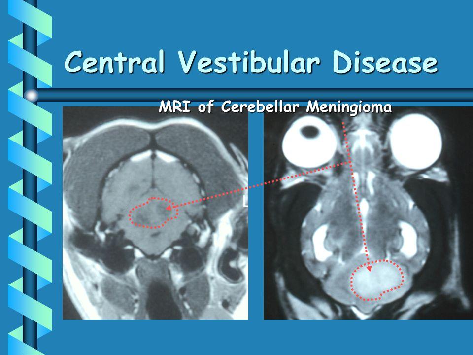 Central Vestibular Disease MRI of Cerebellar Meningioma