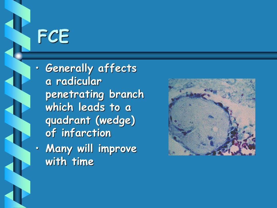 FCE Generally affects a radicular penetrating branch which leads to a quadrant (wedge) of infarctionGenerally affects a radicular penetrating branch w