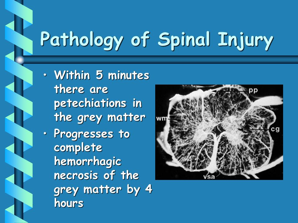 Pathology of Spinal Injury Within 5 minutes there are petechiations in the grey matterWithin 5 minutes there are petechiations in the grey matter Prog