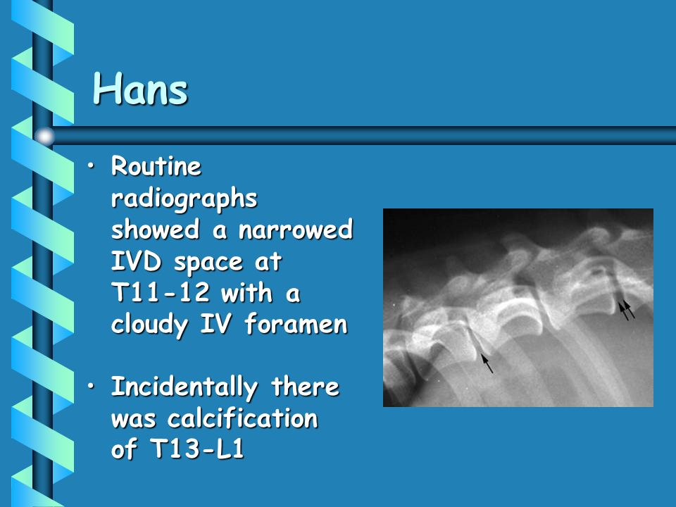 Hans Routine radiographs showed a narrowed IVD space at T11-12 with a cloudy IV foramenRoutine radiographs showed a narrowed IVD space at T11-12 with a cloudy IV foramen Incidentally there was calcification of T13-L1Incidentally there was calcification of T13-L1