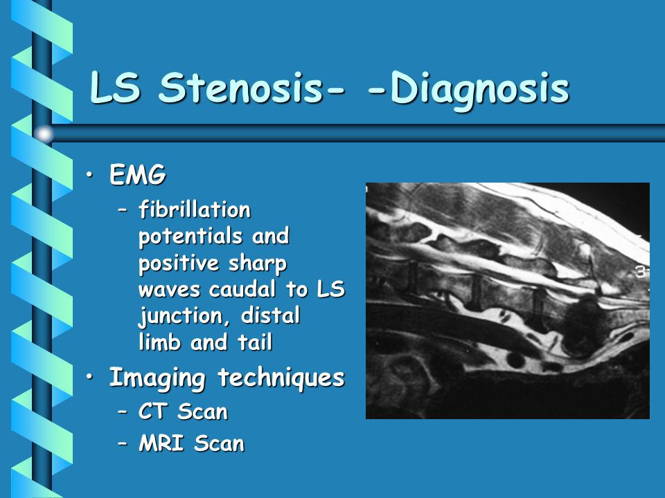 LS Stenosis- -Diagnosis EMGEMG –fibrillation potentials and positive sharp waves caudal to LS junction, distal limb and tail Imaging techniquesImaging