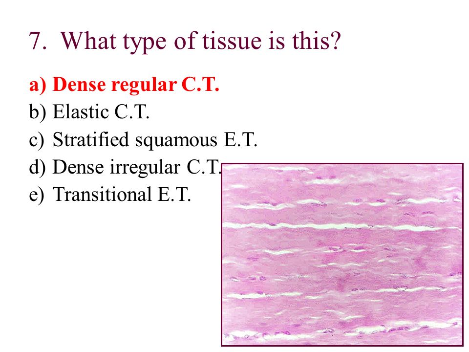 7.What type of tissue is this? a)Dense regular C.T. b)Elastic C.T. c)Stratified squamous E.T. d)Dense irregular C.T. e)Transitional E.T.