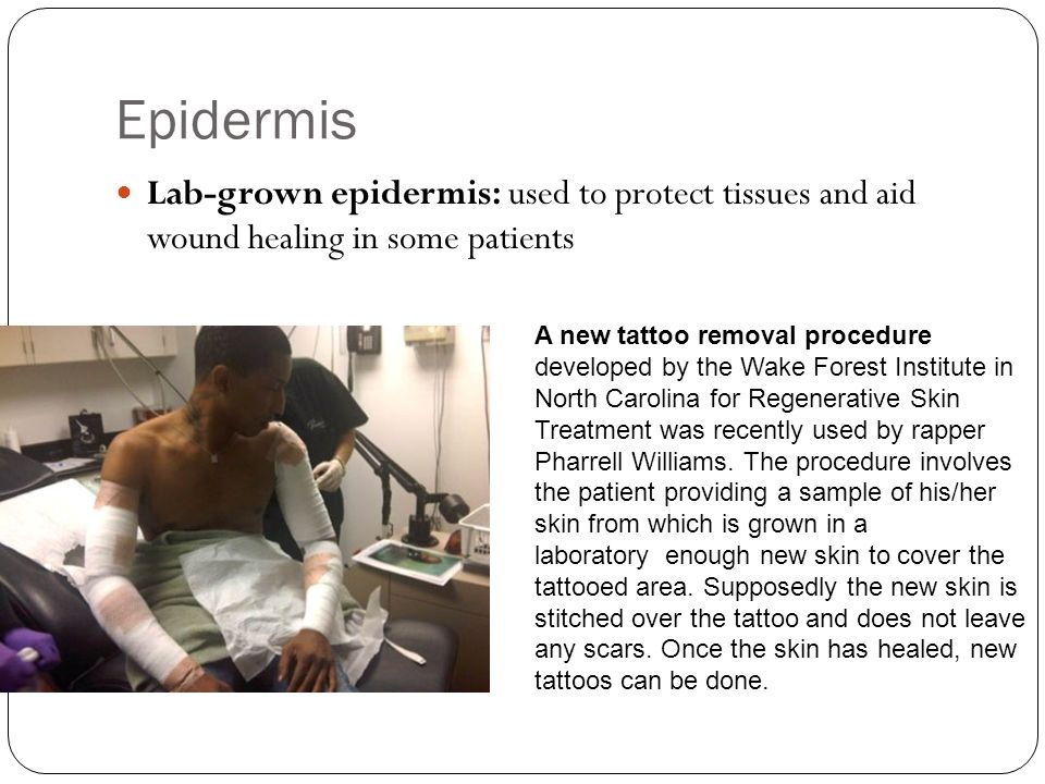 Epidermis Lab-grown epidermis: used to protect tissues and aid wound healing in some patients A new tattoo removal procedure developed by the Wake For
