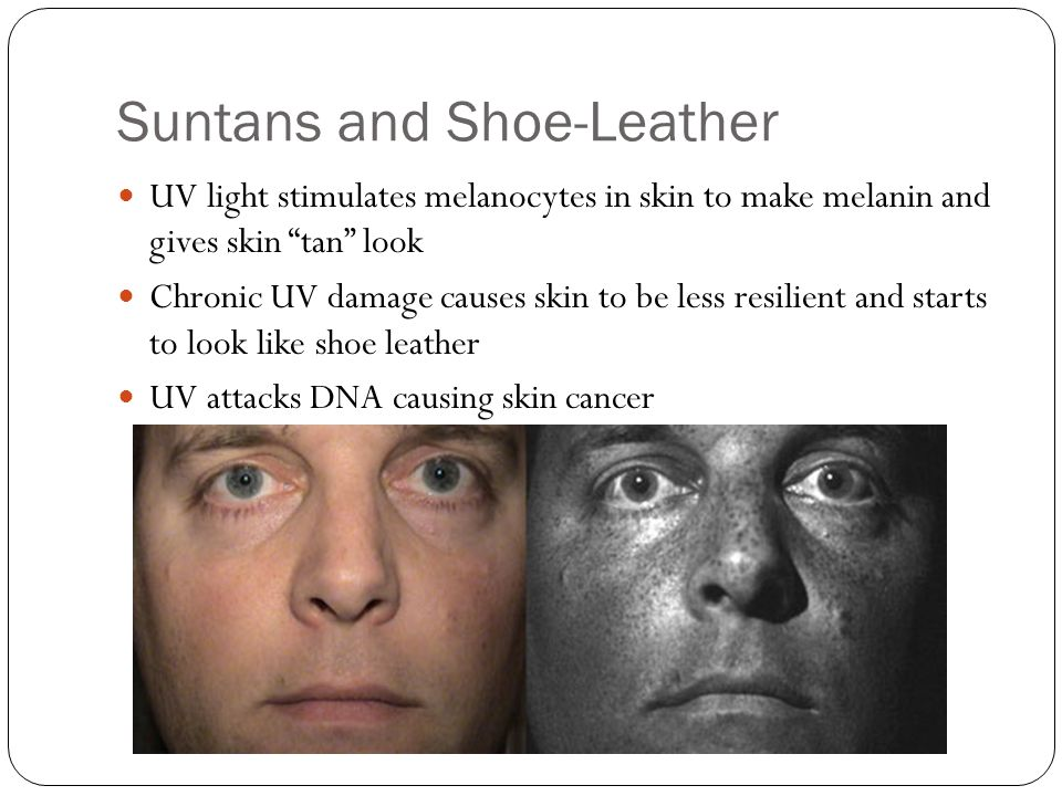 Suntans and Shoe-Leather UV light stimulates melanocytes in skin to make melanin and gives skin tan look Chronic UV damage causes skin to be less resi