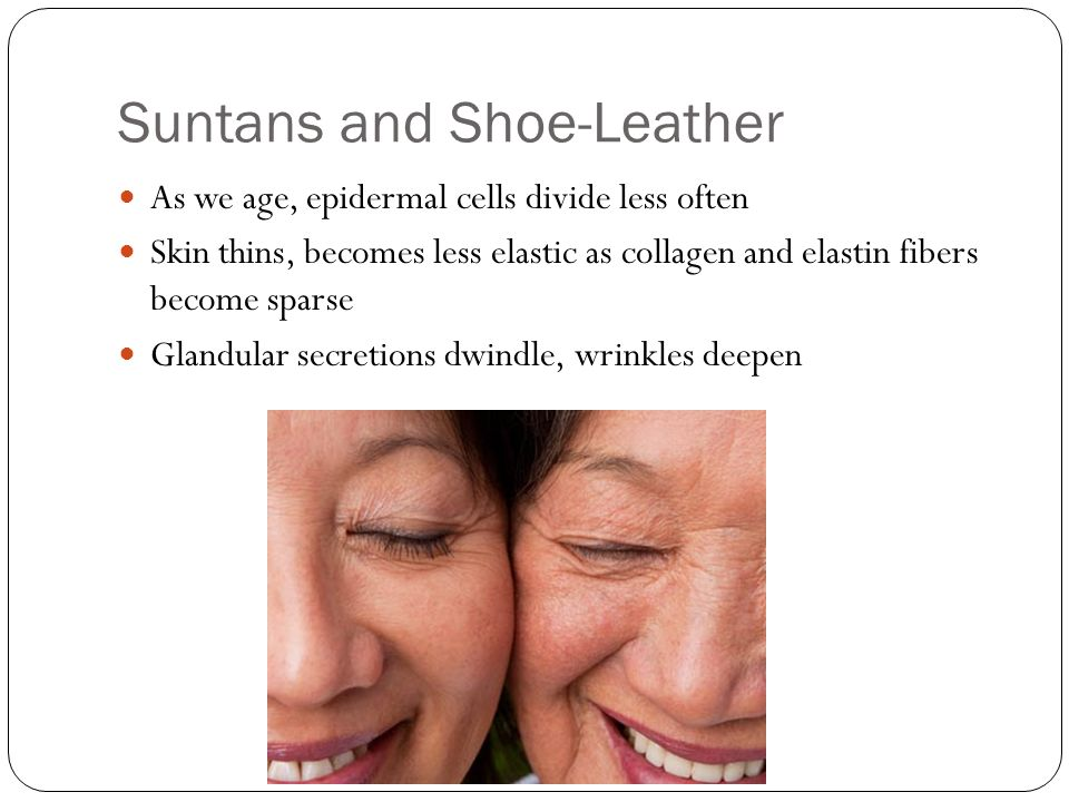 Suntans and Shoe-Leather As we age, epidermal cells divide less often Skin thins, becomes less elastic as collagen and elastin fibers become sparse Gl