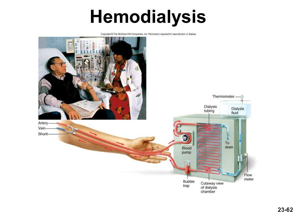 23-62 Hemodialysis