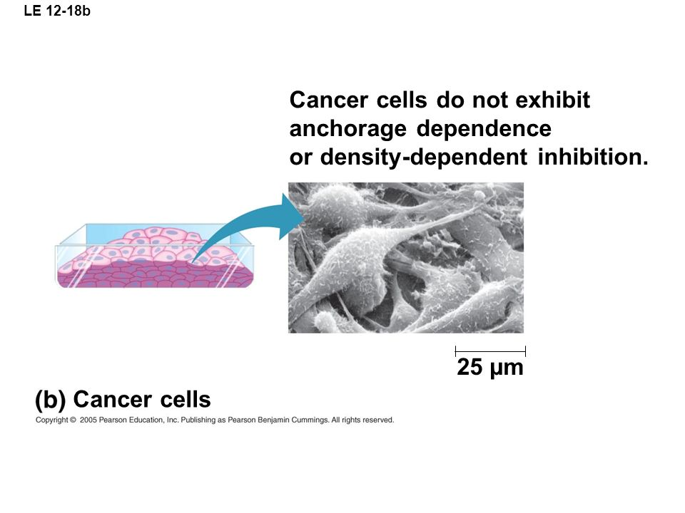 LE 12-18b Cancer cells do not exhibit anchorage dependence or density-dependent inhibition. Cancer cells 25 µm