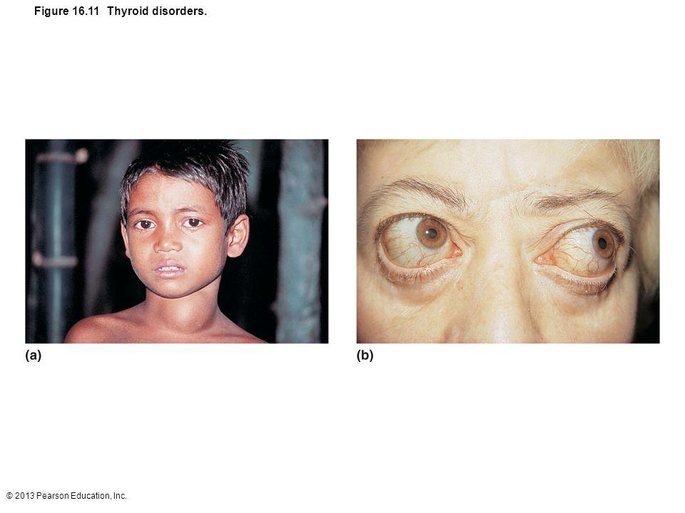 © 2013 Pearson Education, Inc. Figure 16.11 Thyroid disorders.