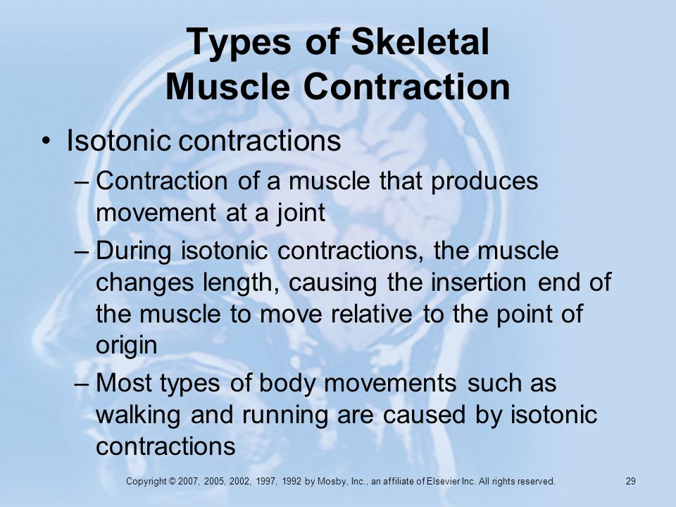 Copyright © 2007, 2005, 2002, 1997, 1992 by Mosby, Inc., an affiliate of Elsevier Inc. All rights reserved. 28 Types of Skeletal Muscle Contraction Tw