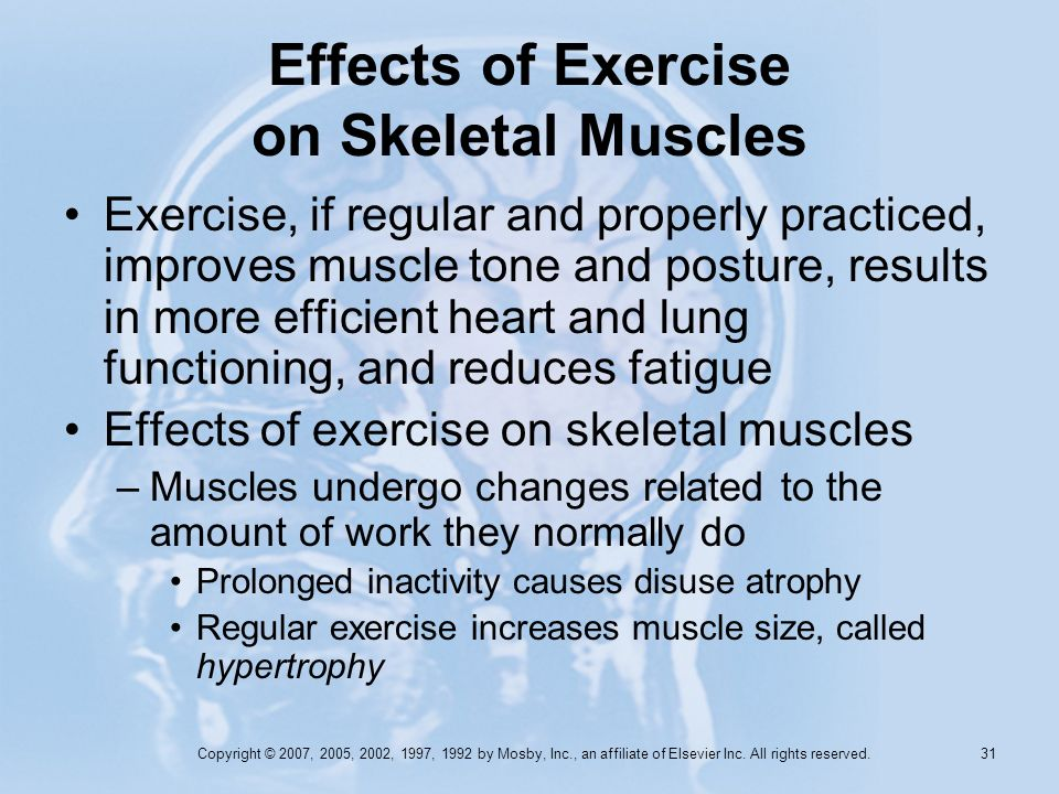 Copyright © 2007, 2005, 2002, 1997, 1992 by Mosby, Inc., an affiliate of Elsevier Inc. All rights reserved. 30 Types of Skeletal Muscle Contraction Is