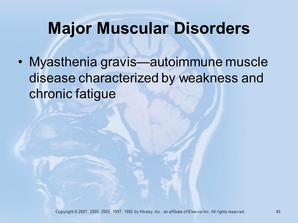 Copyright © 2007, 2005, 2002, 1997, 1992 by Mosby, Inc., an affiliate of Elsevier Inc. All rights reserved. 48 Major Muscular Disorders Muscular dystr