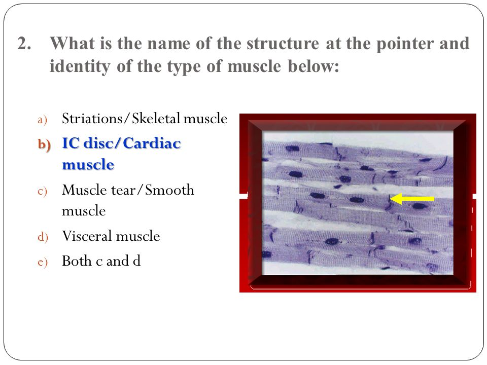 3.What muscle is antagonistic to muscle # 3 . Trapezius.