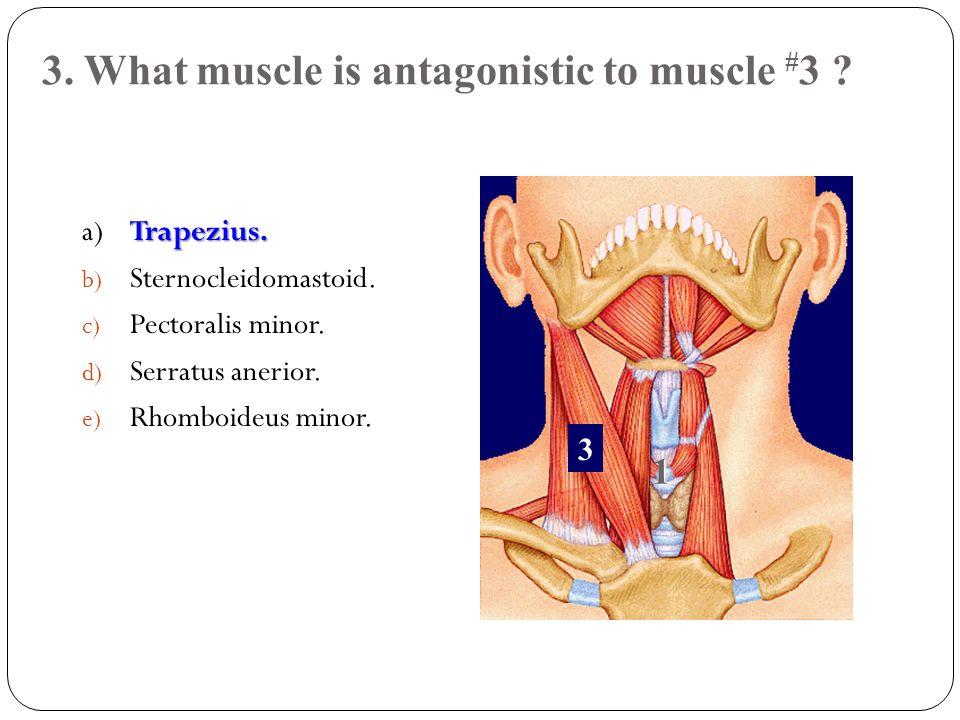 24.Name the white connective tissue at the arrow a) Endomysium b) Epimysium c) Perimysium d) Fascia e) Both b and d