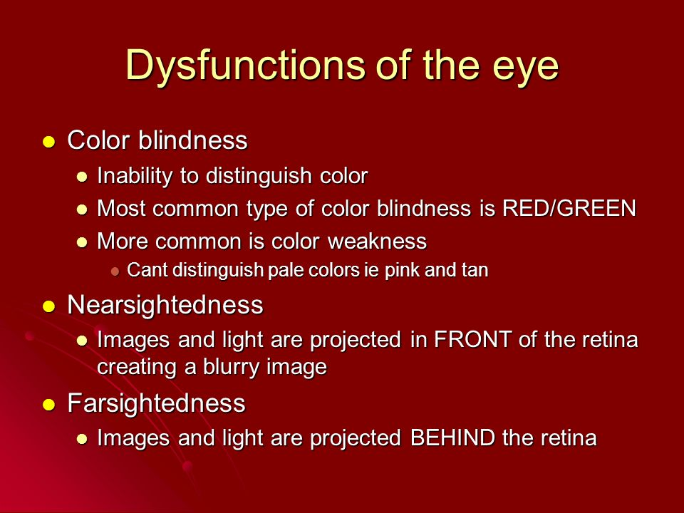 Dysfunctions of the eye Color blindness Color blindness Inability to distinguish color Inability to distinguish color Most common type of color blindn