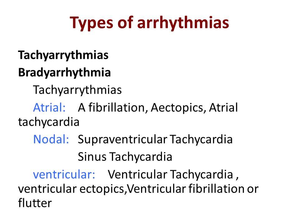 Types of arrhythmias Tachyarrythmias Bradyarrhythmia Tachyarrythmias Atrial: A fibrillation, Aectopics, Atrial tachycardia Nodal: Supraventricular Tac