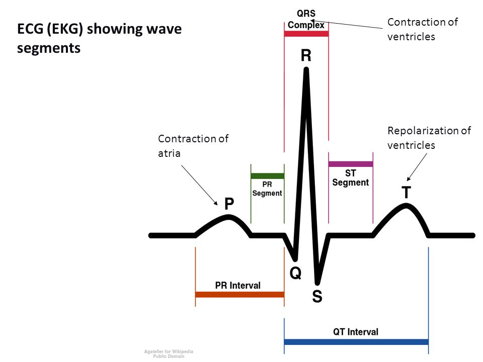 ECG (EKG) showing wave segments Contraction of atria Contraction of ventricles Repolarization of ventricles