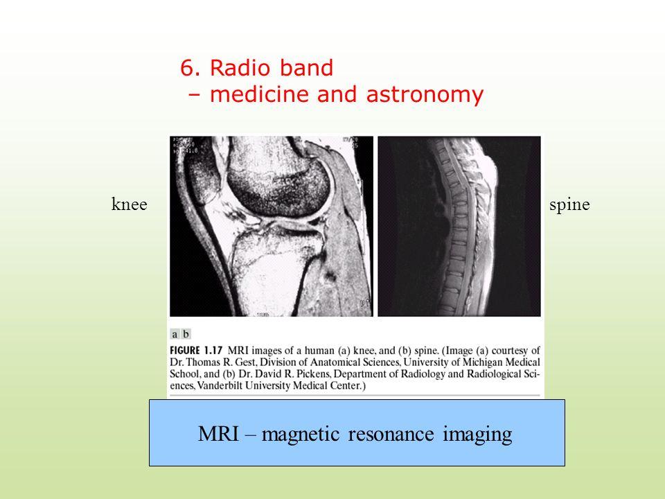 6. Radio band – medicine and astronomy MRI – magnetic resonance imaging kneespine