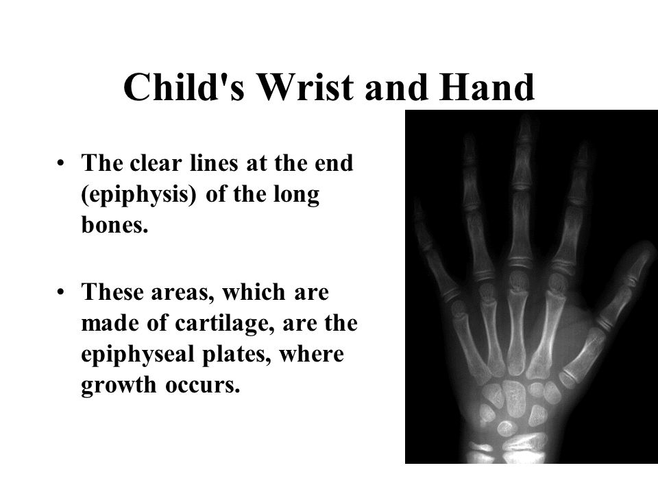 Adult's Wrist and Hand The white lines shown at the end (epiphysis) of the long bones. These areas, called the epiphyseal lines, form when the growth