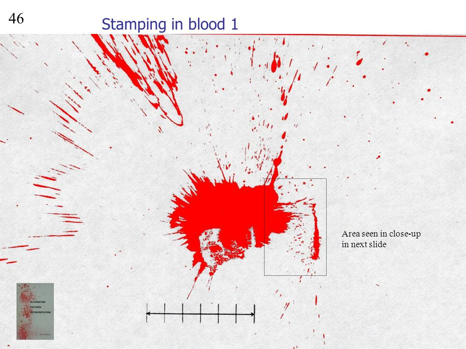 Splash onto vertical surface 6 ruler 10 ml blood thrown 1 m onto a vertical target surface 45