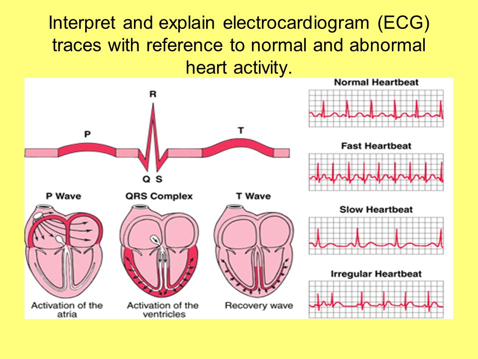 Interpret and explain electrocardiogram (ECG) traces with reference to normal and abnormal heart activity.