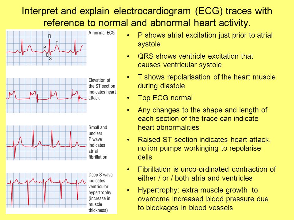 Ventricular Systole on Ekg Causes Ventricular Systole