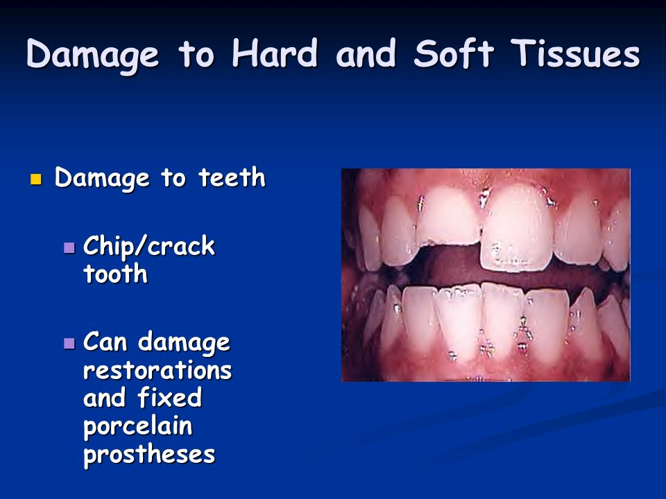 Damage to Hard and Soft Tissues Damage to teeth Damage to teeth Chip/crack tooth Chip/crack tooth Can damage restorations and fixed porcelain prosthes