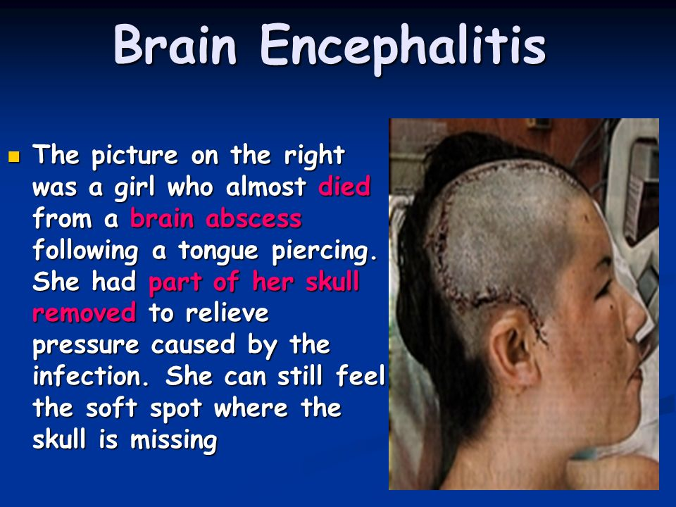 Brain Encephalitis The picture on the right was a girl who almost died from a brain abscess following a tongue piercing. She had part of her skull rem