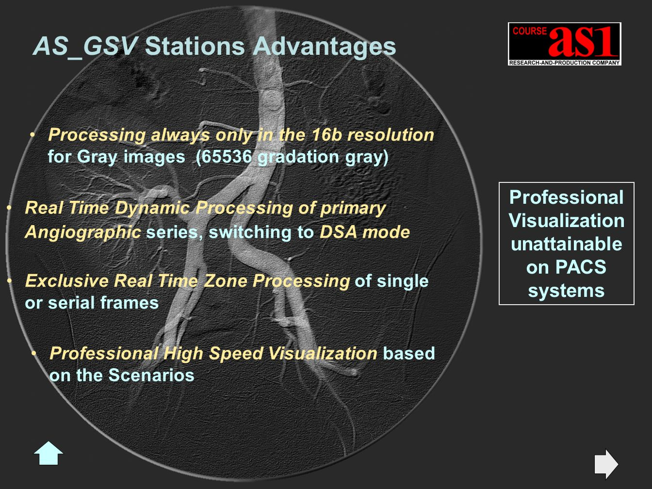 AS_GSV Stations Advantages Real Time Dynamic Processing of primary Angiographic series, switching to DSA mode Exclusive Real Time Zone Processing of single or serial frames Professional High Speed Visualization based on the Scenarios Processing always only in the 16b resolution for Gray images (65536 gradation gray) Professional Visualization unattainable on PACS systems