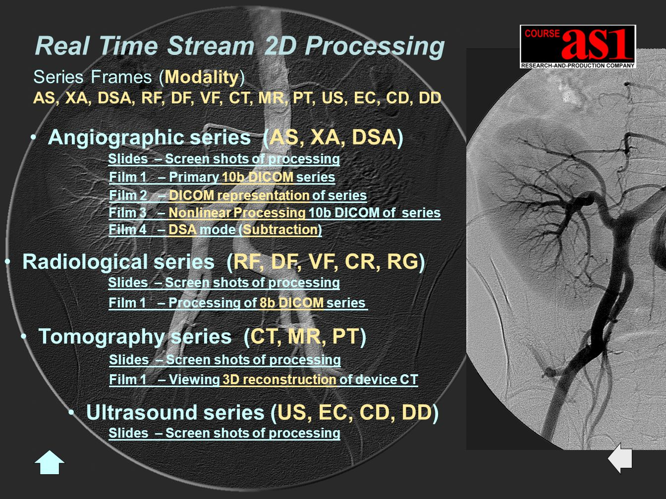 Radiological series (RF, DF, VF, CR, RG) Slides – Screen shots of processing Film 1 – Processing of 8b DICOM series Angiographic series (AS, XA, DSA) Tomography series (CT, MR, PT) Ultrasound series (US, EC, CD, DD) Slides – Screen shots of processing Film 1 – Primary 10b DICOM series Film 2 – DICOM representation of series Film 3 – Nonlinear Processing 10b DICOM of series Film 4 – DSA mode (Subtraction) Film 1 – Viewing 3D reconstruction of device CT Slides – Screen shots of processing Slides – Screen shots of processing Real Time Stream 2D Processing Series Frames (Modality) AS, XA, DSA, RF, DF, VF, CT, MR, PT, US, EC, CD, DD