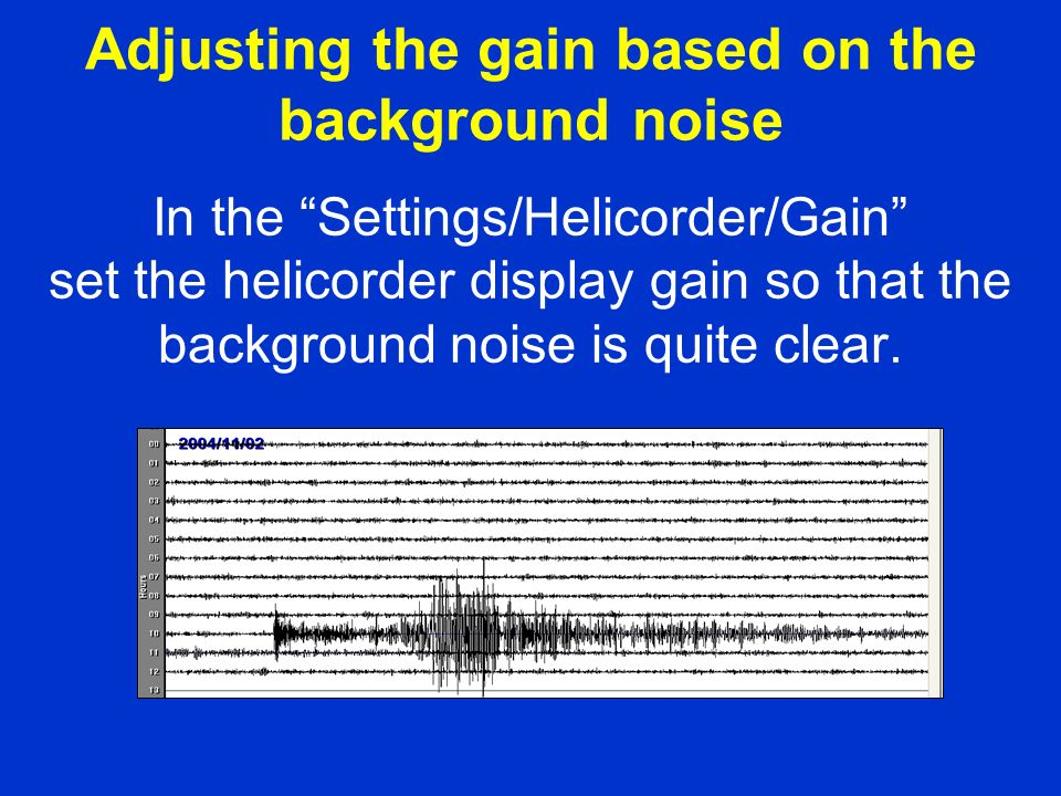 In the Settings/Helicorder/Gain set the helicorder display gain so that the background noise is quite clear.