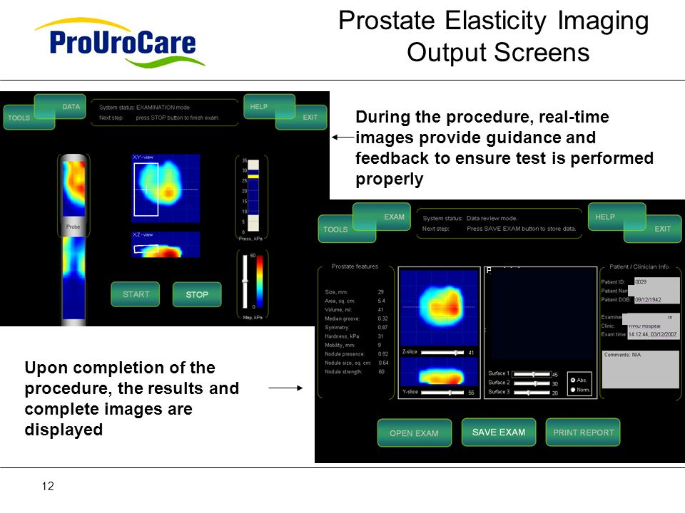 12 During the procedure, real-time images provide guidance and feedback to ensure test is performed properly Upon completion of the procedure, the results and complete images are displayed Prostate image Prostate Elasticity Imaging Output Screens