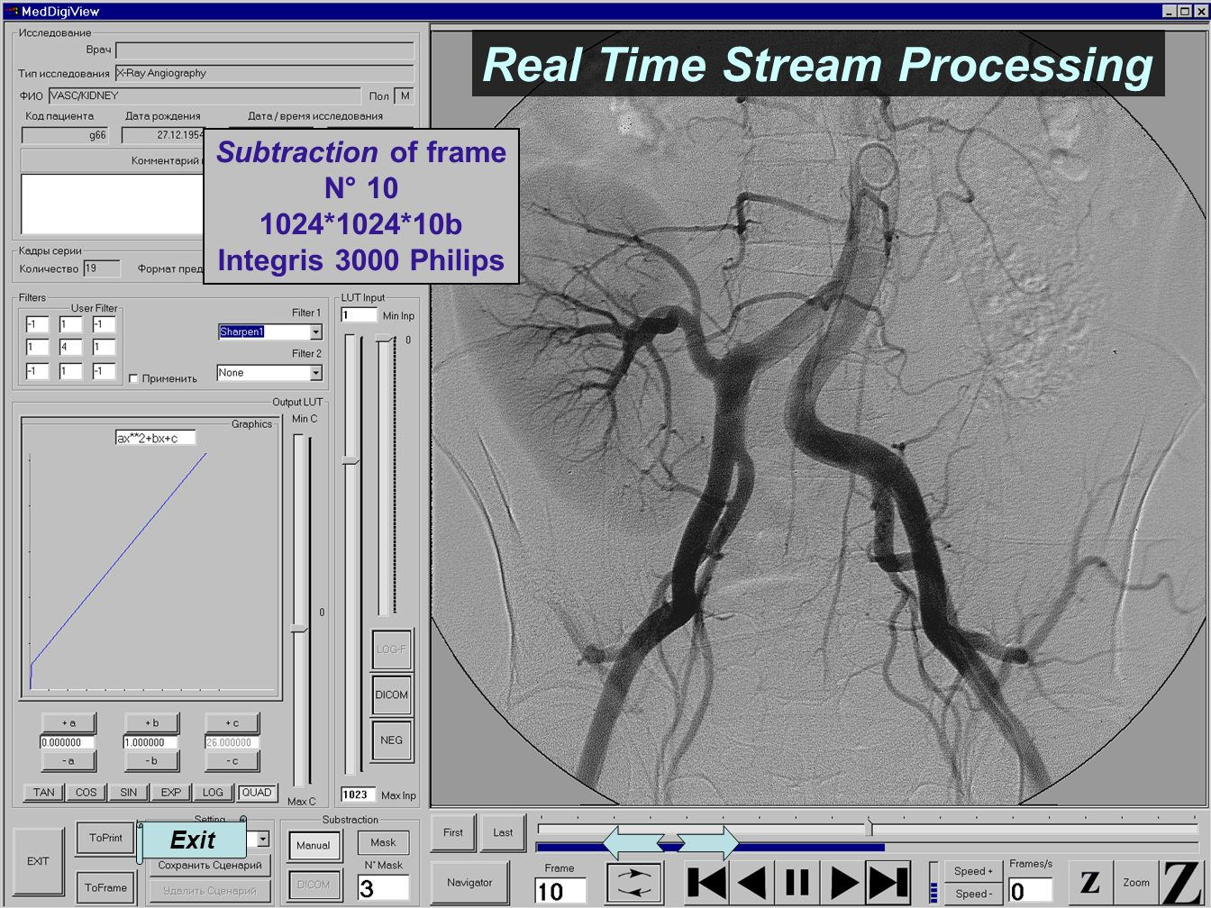 Exit Subtraction of frame N° 10 1024*1024*10b Integris 3000 Philips Real Time Stream Processing