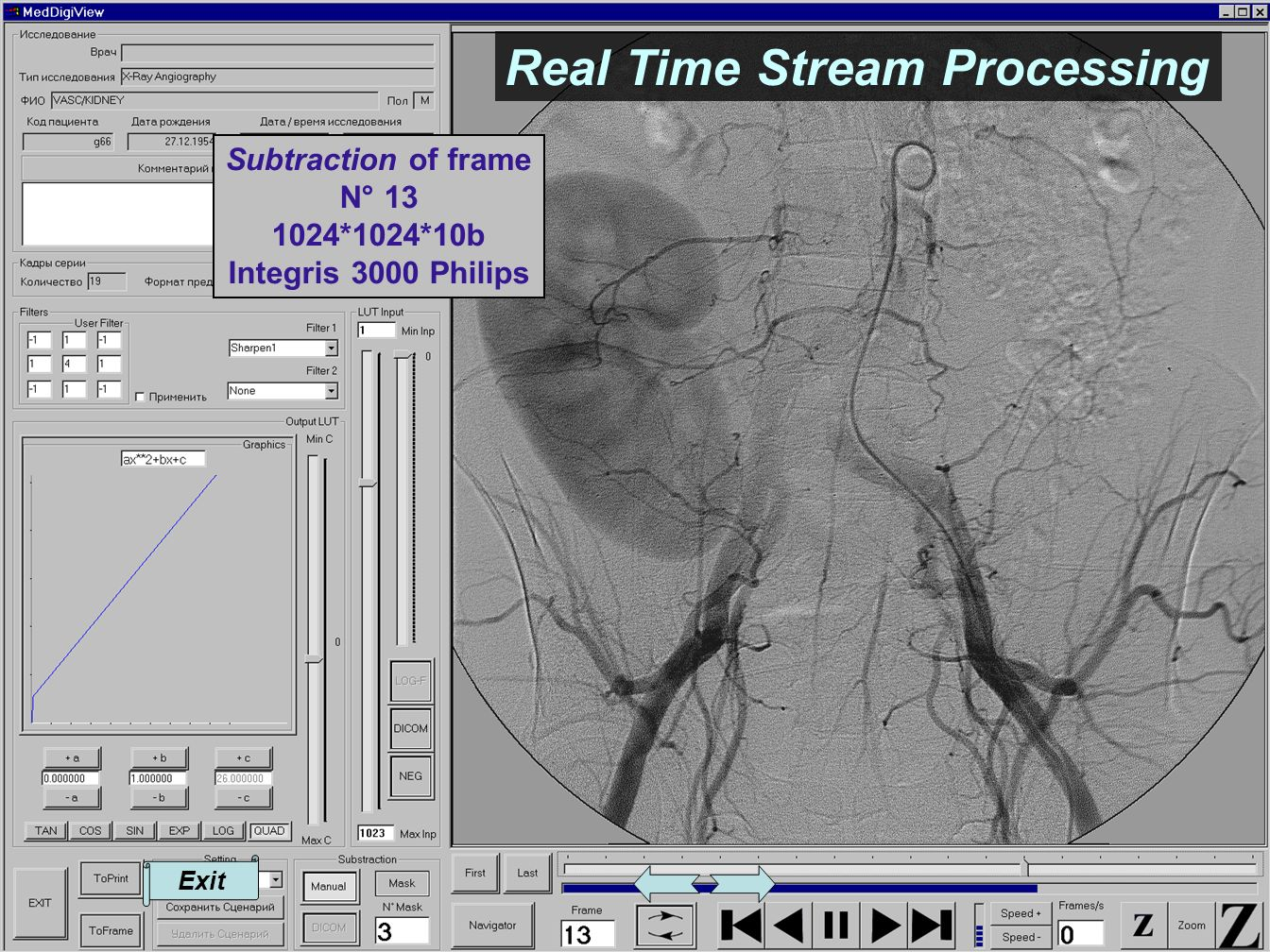 Exit Subtraction of frame N° 13 1024*1024*10b Integris 3000 Philips Real Time Stream Processing