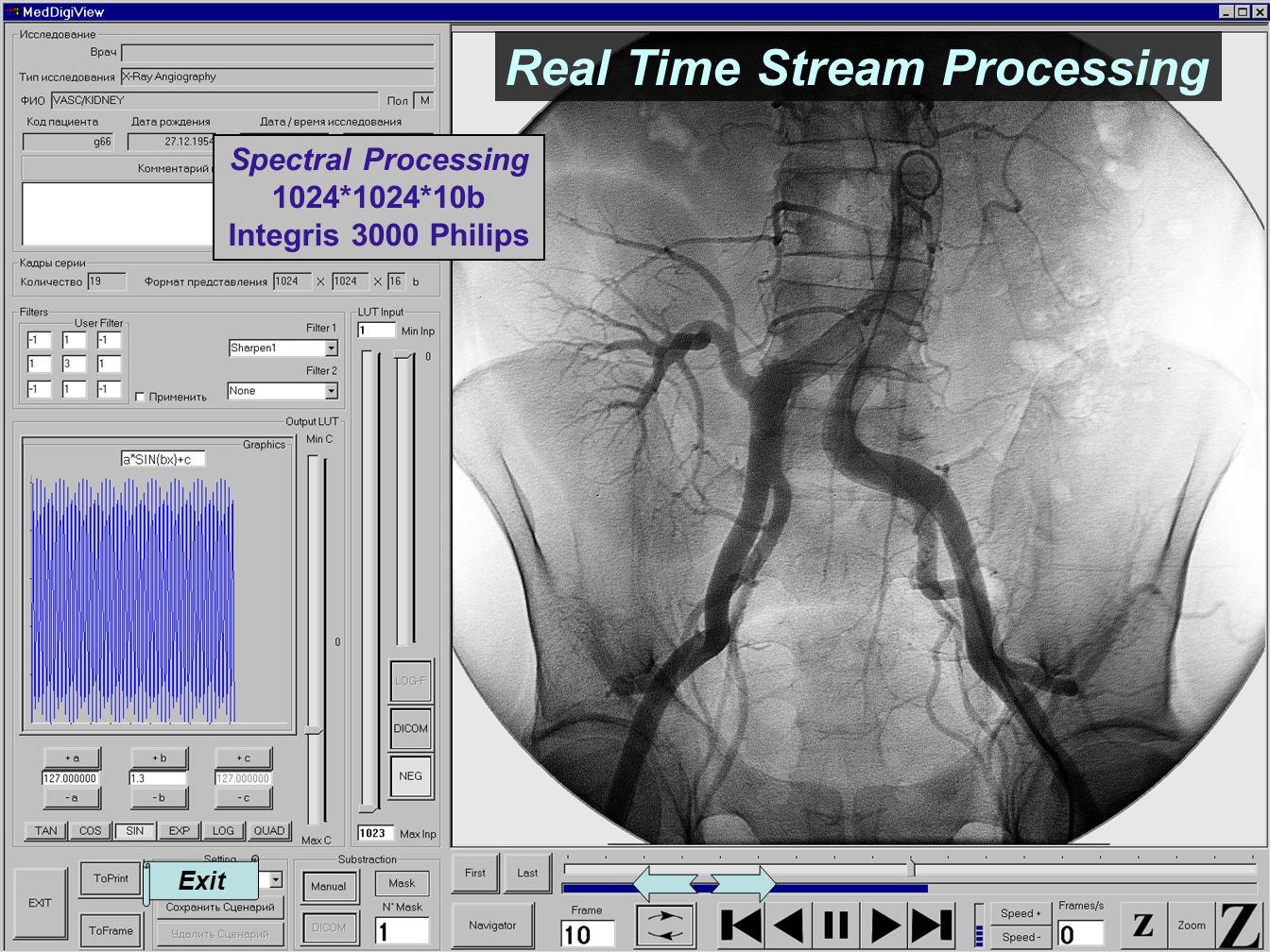 Exit Spectral Processing 1024*1024*10b Integris 3000 Philips Real Time Stream Processing