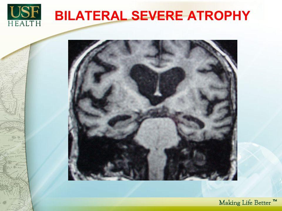 BILATERAL SEVERE ATROPHY