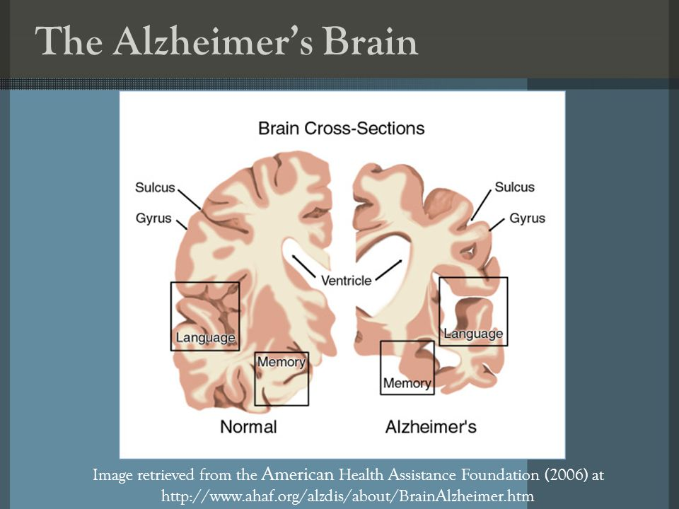 The Alzheimers Brain Image retrieved from the American Health Assistance Foundation (2006) at http://www.ahaf.org/alzdis/about/BrainAlzheimer.htm