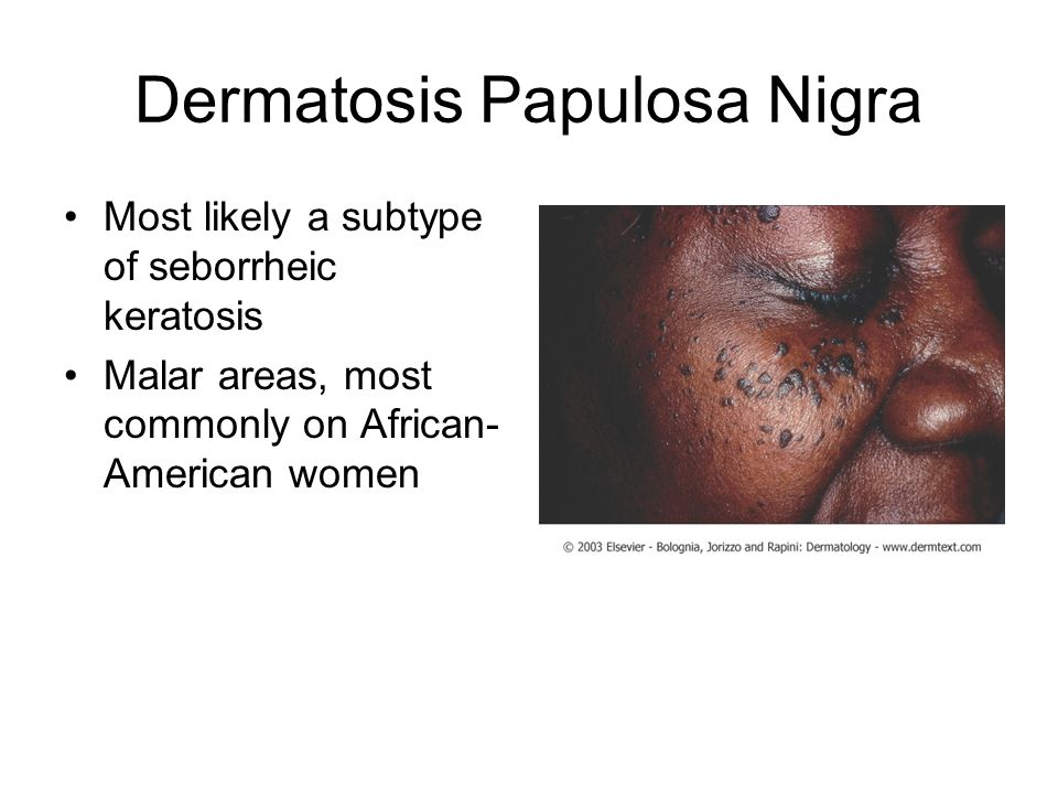 Dermatosis Papulosa Nigra Most likely a subtype of seborrheic keratosis Malar areas, most commonly on African- American women