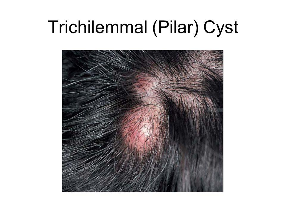 Trichilemmal (Pilar) Cyst