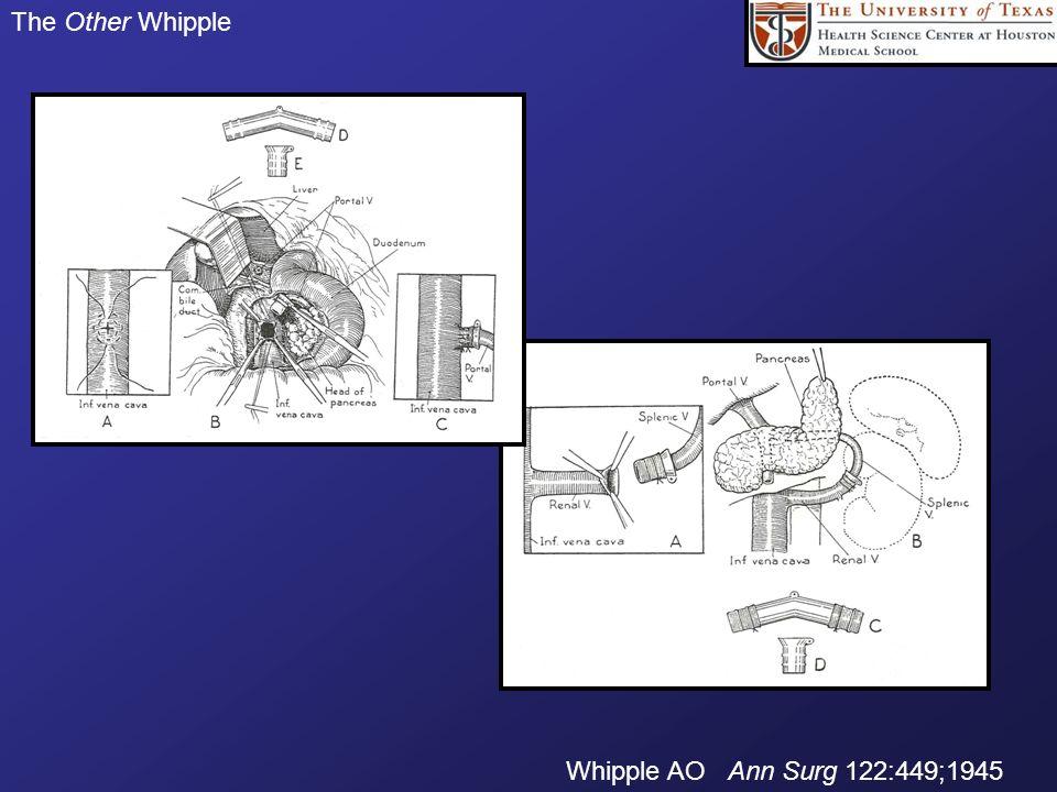 The Other Whipple Whipple AO Ann Surg 122:449;1945