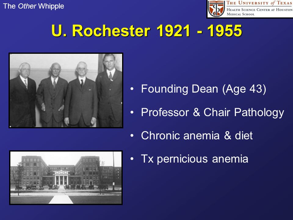 The Other Whipple U. Rochester 1921 - 1955 Founding Dean (Age 43) Professor & Chair Pathology Chronic anemia & diet Tx pernicious anemia