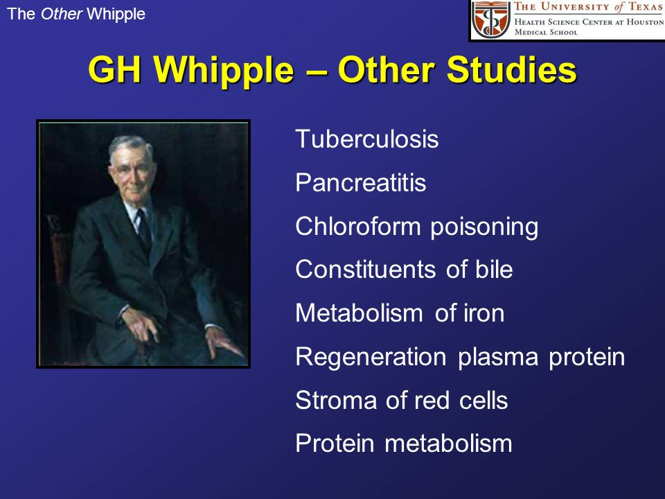 The Other Whipple GH Whipple – Other Studies Tuberculosis Pancreatitis Chloroform poisoning Constituents of bile Metabolism of iron Regeneration plasm