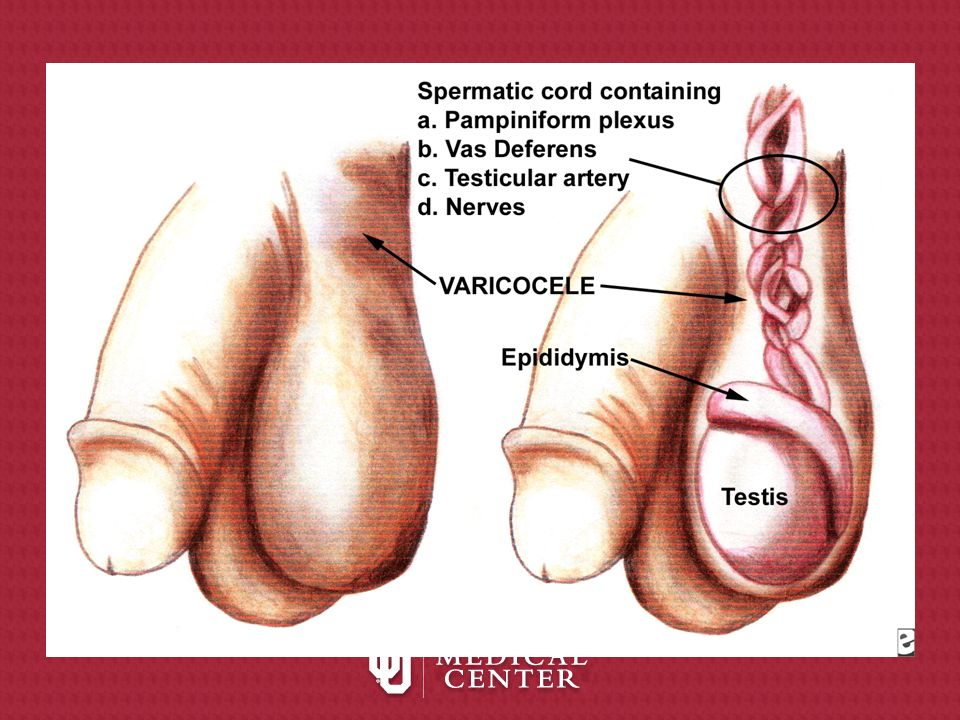 Follow Up Check patient s semen 3-4 months after surgery if done for infertility spermatogenesis requires approximately 72 days –any effects from varicocele repair on semen parameters are delayed