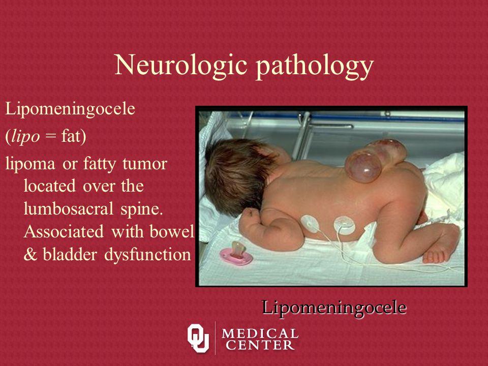 Neurologic pathology Lipomeningocele (lipo = fat) lipoma or fatty tumor located over the lumbosacral spine. Associated with bowel & bladder dysfunctio