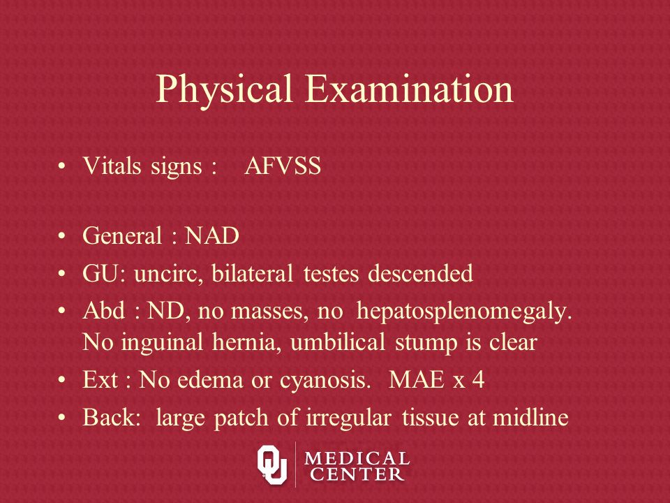 Physical Examination Vitals signs : AFVSS General : NAD GU: uncirc, bilateral testes descended Abd : ND, no masses, no hepatosplenomegaly. No inguinal