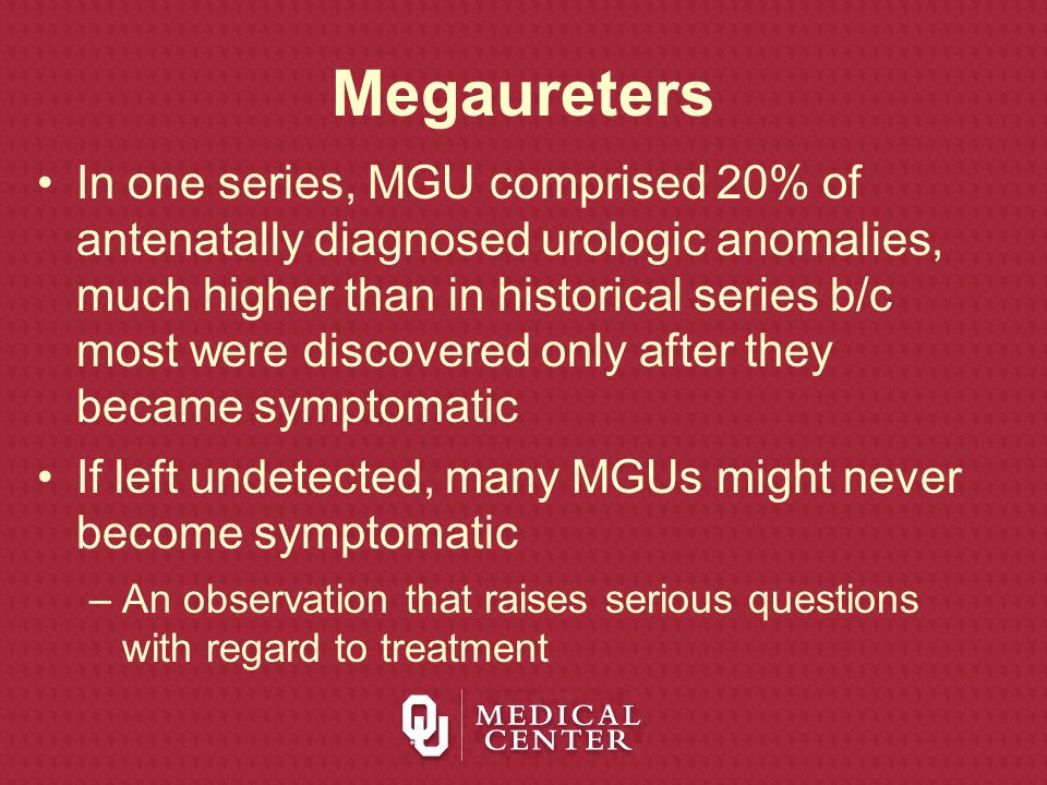 Megaureters In one series, MGU comprised 20% of antenatally diagnosed urologic anomalies, much higher than in historical series b/c most were discover