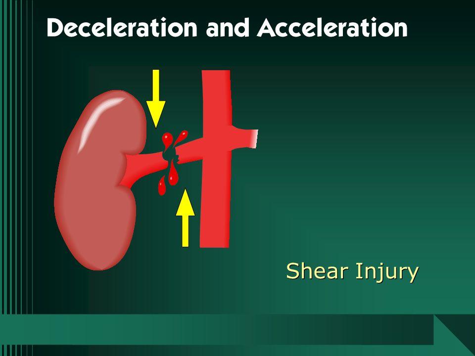 Shear Injury Deceleration and Acceleration